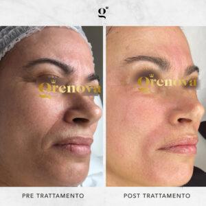 trattamento illuminante viso